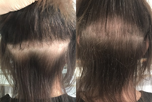 back shot of woman with short brown hair with large bald areas caused by bad hair extensions in manchester